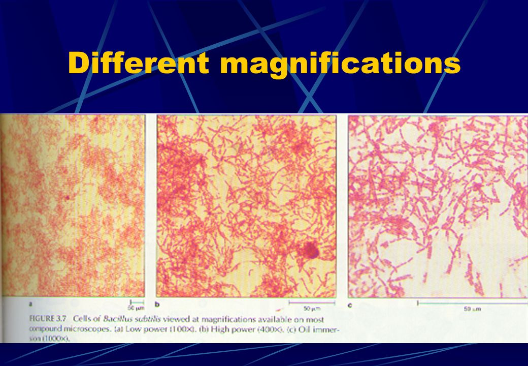 Different magnifications