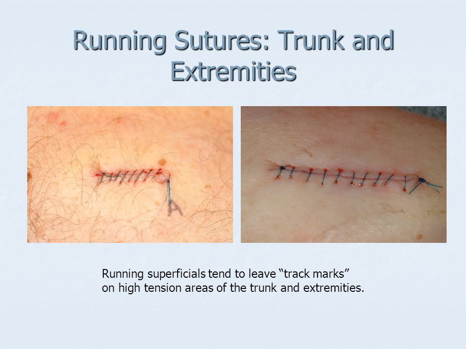 Running Sutures: Trunk and Extremities Running superficials tend to leave track marks on high tension areas of the trunk and extremities.