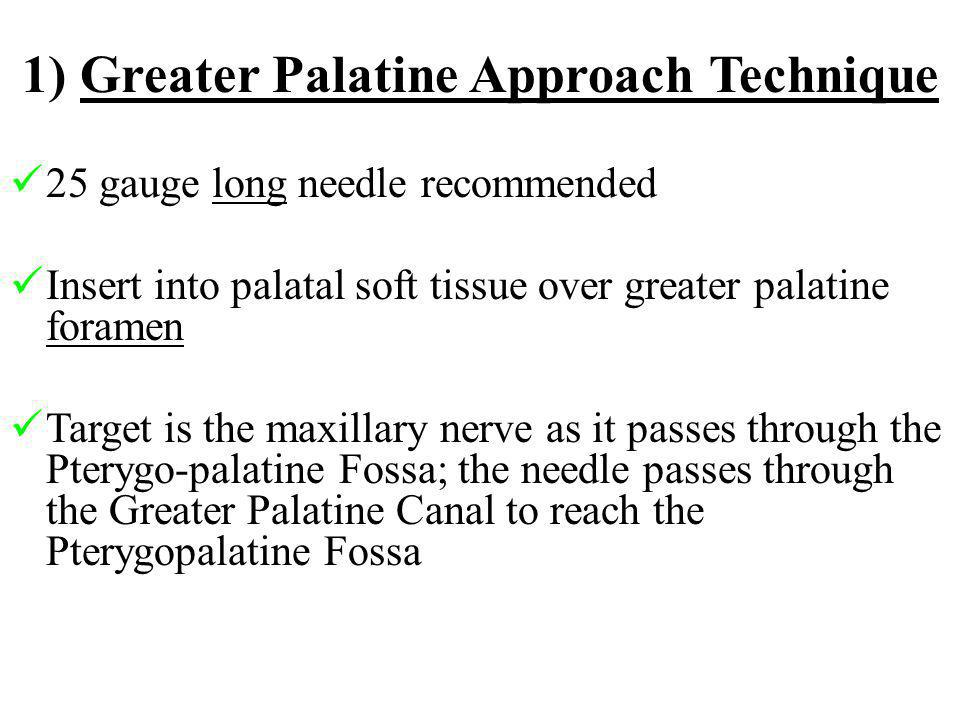 1) Greater Palatine Approach Technique 25 gauge long needle recommended Insert into palatal soft tissue over greater palatine foramen Target is the ma