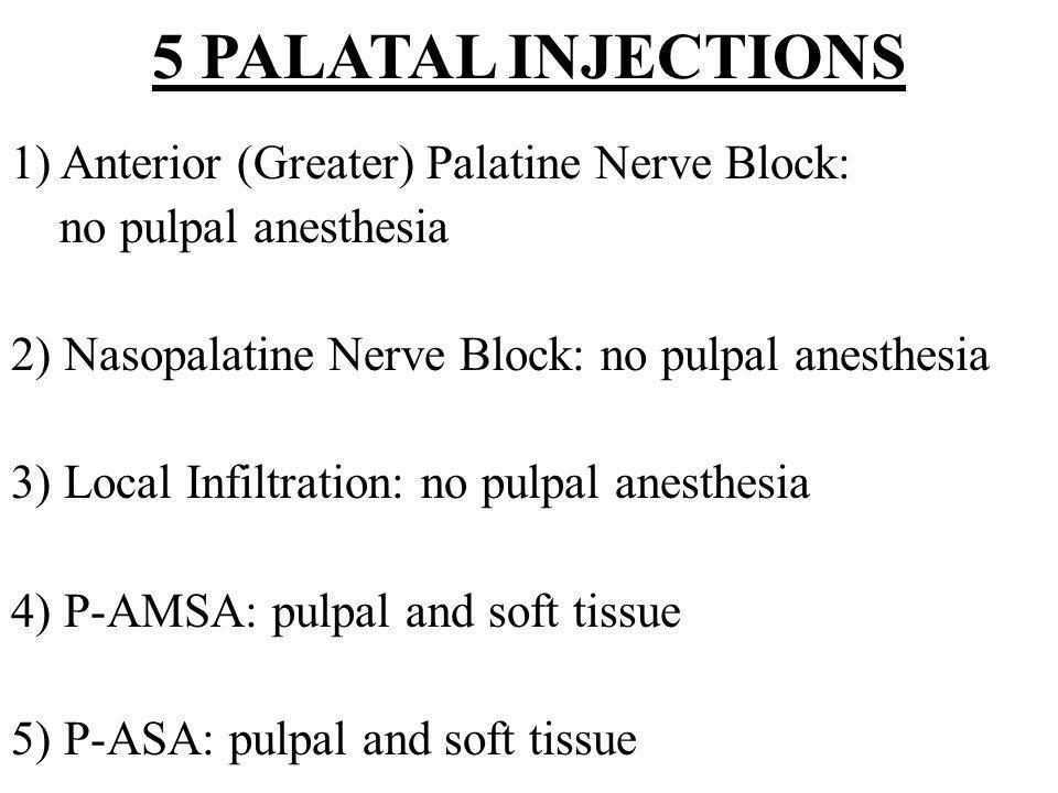5 PALATAL INJECTIONS 1) Anterior (Greater) Palatine Nerve Block: no pulpal anesthesia 2) Nasopalatine Nerve Block: no pulpal anesthesia 3) Local Infil