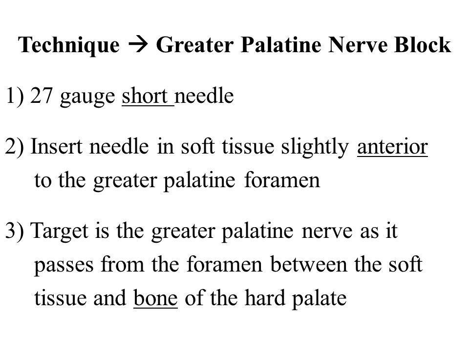 Technique Greater Palatine Nerve Block 1) 27 gauge short needle 2) Insert needle in soft tissue slightly anterior to the greater palatine foramen 3) T