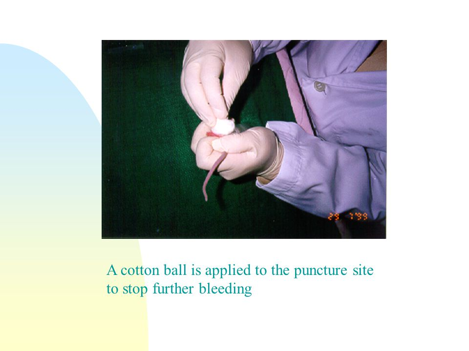 A cotton ball is applied to the puncture site to stop further bleeding