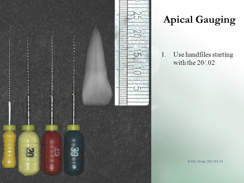 © 2006 J.Bringas, DMD, DDS, MS Apical Gauging 1.Use handfiles starting with the 20/.02