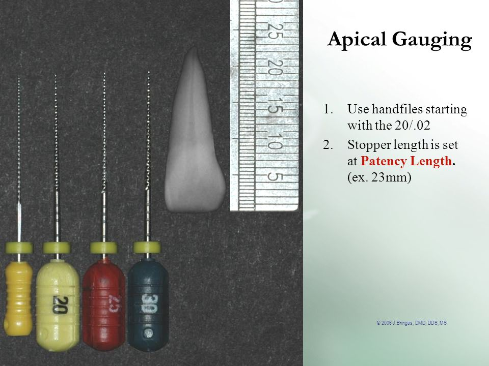 © 2006 J.Bringas, DMD, DDS, MS Apical Gauging 1.Use handfiles starting with the 20/.02 2.Stopper length is set at Patency Length. (ex. 23mm)