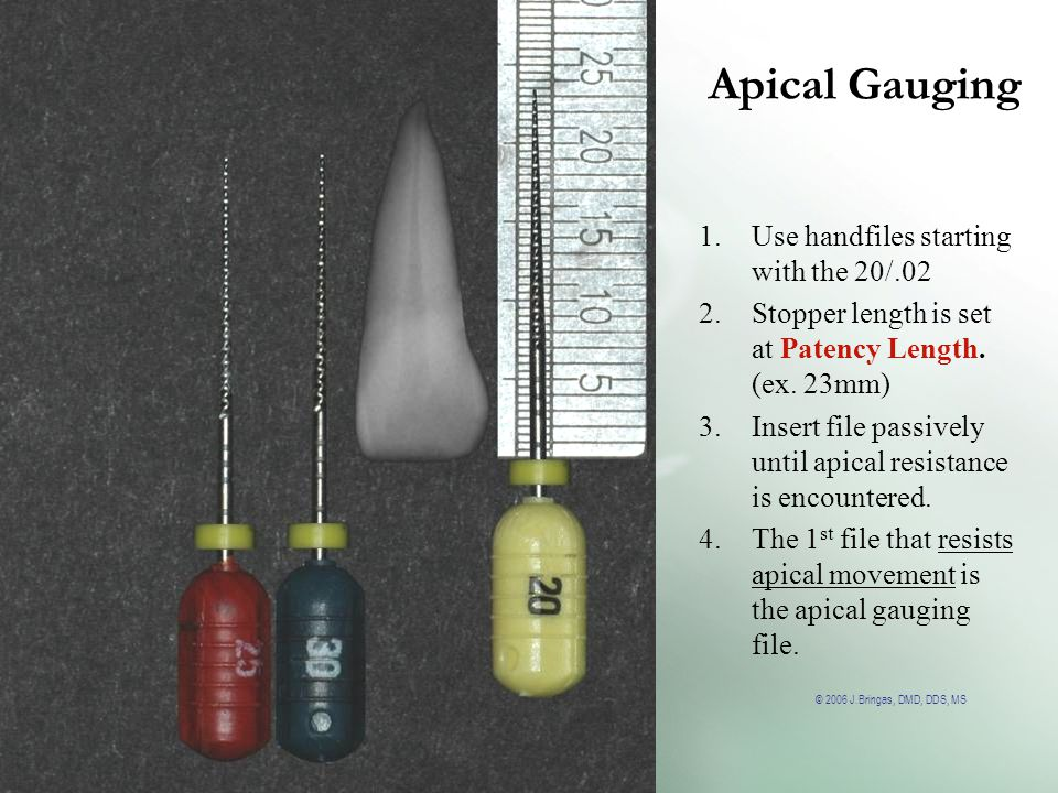 © 2006 J.Bringas, DMD, DDS, MS Apical Gauging 1.Use handfiles starting with the 20/.02 2.Stopper length is set at Patency Length. (ex. 23mm) 3.Insert