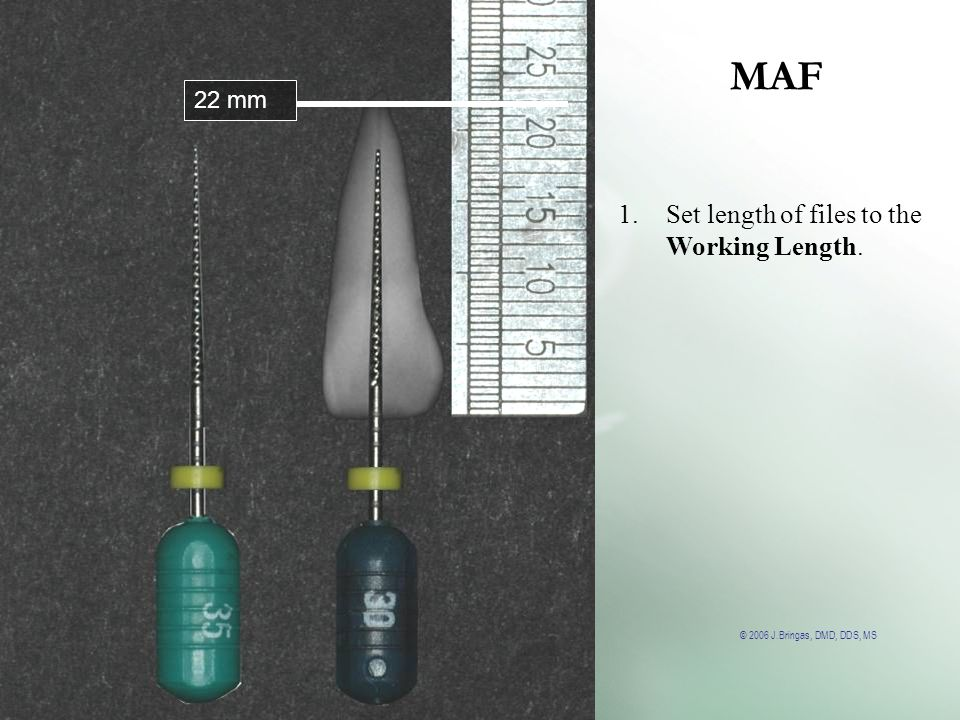 © 2006 J.Bringas, DMD, DDS, MS MAF 22 mm 1.Set length of files to the Working Length.