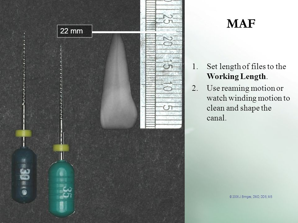 © 2006 J.Bringas, DMD, DDS, MS MAF 22 mm 1.Set length of files to the Working Length. 2.Use reaming motion or watch winding motion to clean and shape