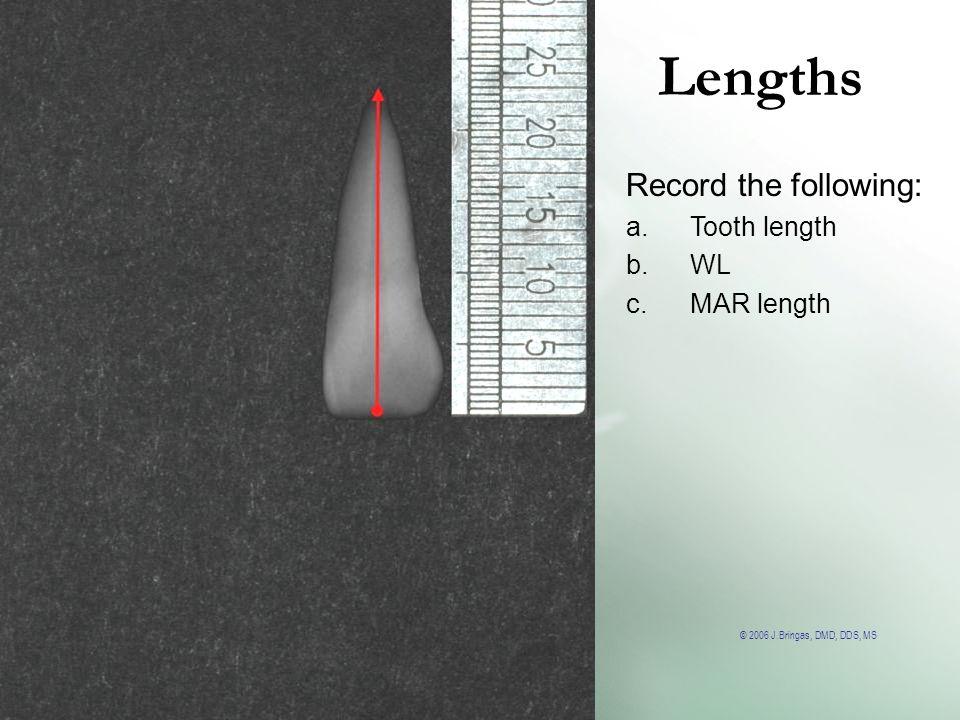 © 2006 J.Bringas, DMD, DDS, MS Lengths Record the following: a.Tooth length b.WL c.MAR length