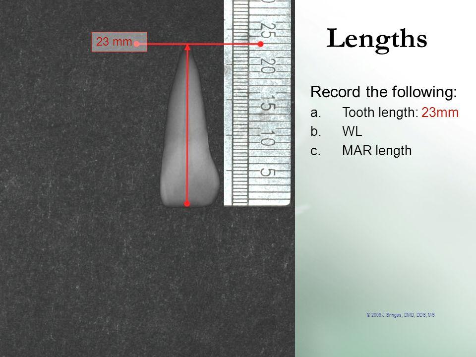 © 2006 J.Bringas, DMD, DDS, MS Lengths 23 mm Record the following: a.Tooth length: 23mm b.WL c.MAR length