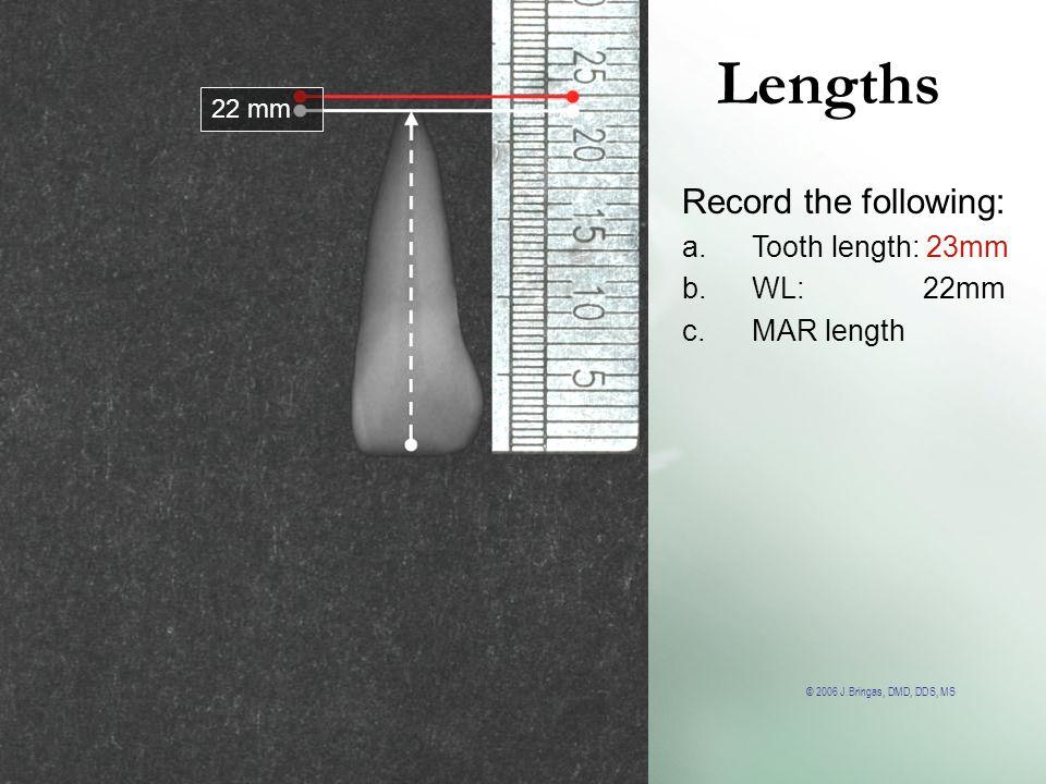 © 2006 J.Bringas, DMD, DDS, MS Lengths 22 mm Record the following: a.Tooth length: 23mm b.WL: 22mm c.MAR length