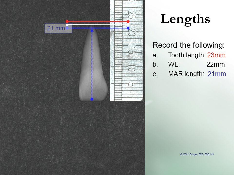 © 2006 J.Bringas, DMD, DDS, MS Lengths 21 mm Record the following: a.Tooth length: 23mm b.WL: 22mm c.MAR length: 21mm