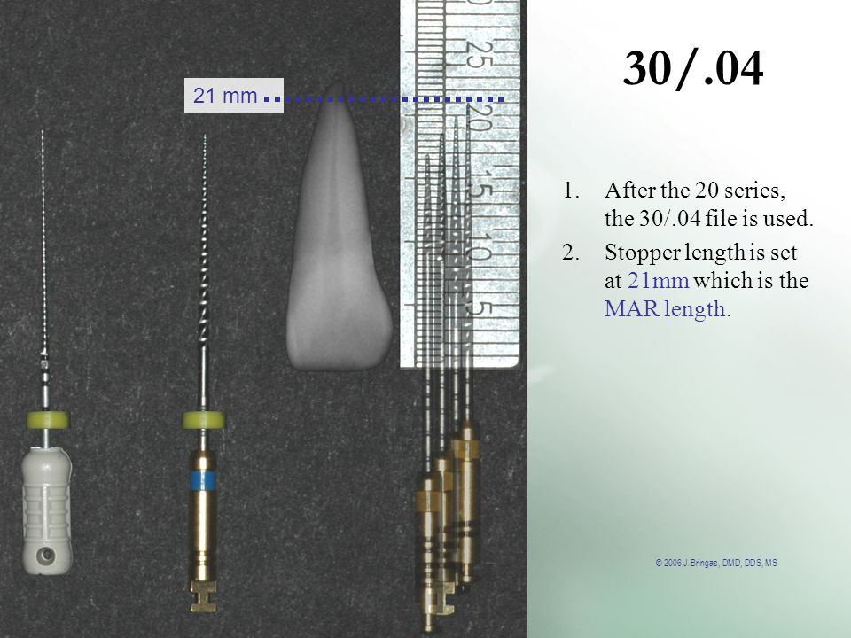 © 2006 J.Bringas, DMD, DDS, MS 30/.04 21 mm 1.After the 20 series, the 30/.04 file is used. 2.Stopper length is set at 21mm which is the MAR length.