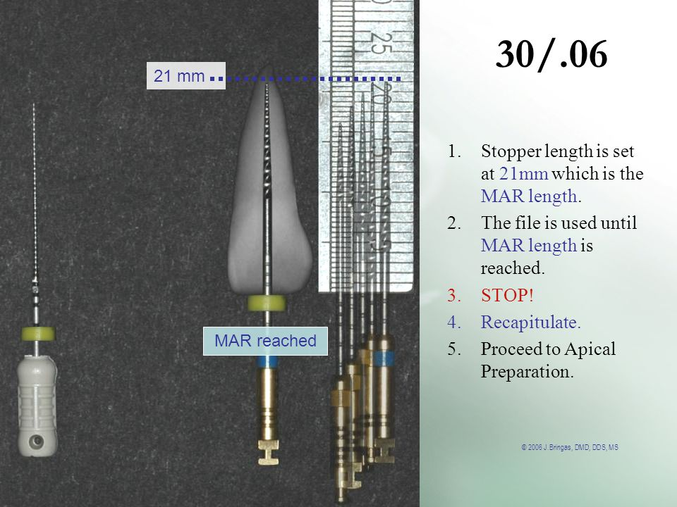 © 2006 J.Bringas, DMD, DDS, MS 30/.06 MAR reached 21 mm 1.Stopper length is set at 21mm which is the MAR length. 2.The file is used until MAR length i