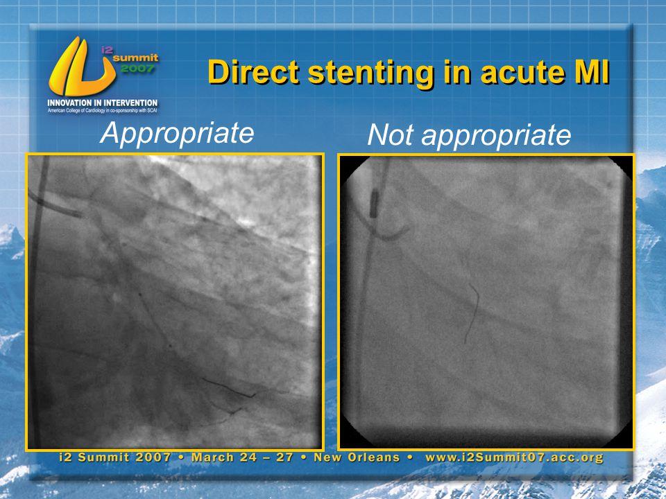 Direct stenting in acute MI Not appropriate Appropriate