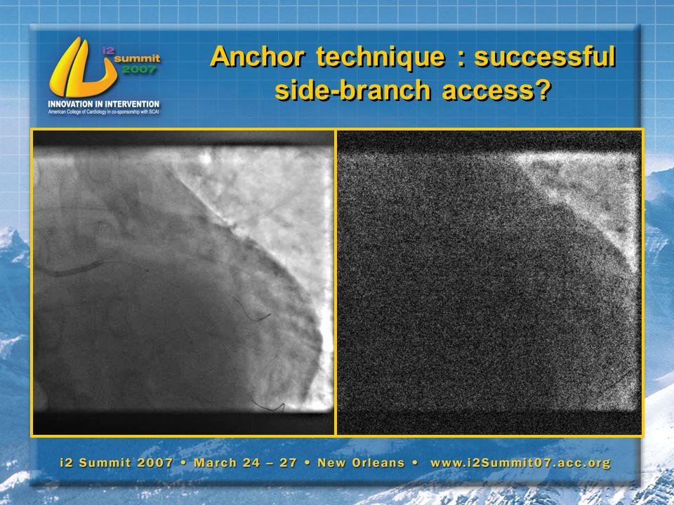 Anchor technique : successful side-branch access?