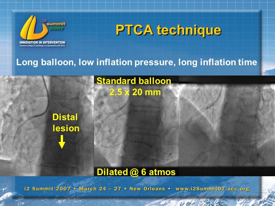 PTCA technique Long balloon, low inflation pressure, long inflation time Standard balloon 2.5 x 20 mm Dilated @ 6 atmos Distal lesion