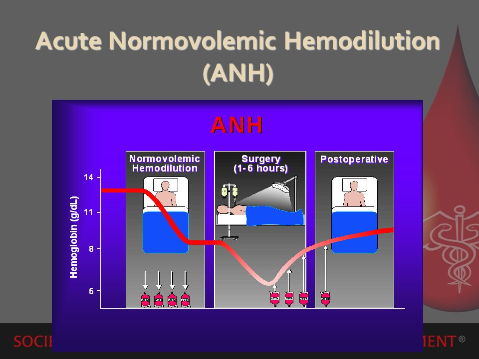 Acute Normovolemic Hemodilution (ANH)