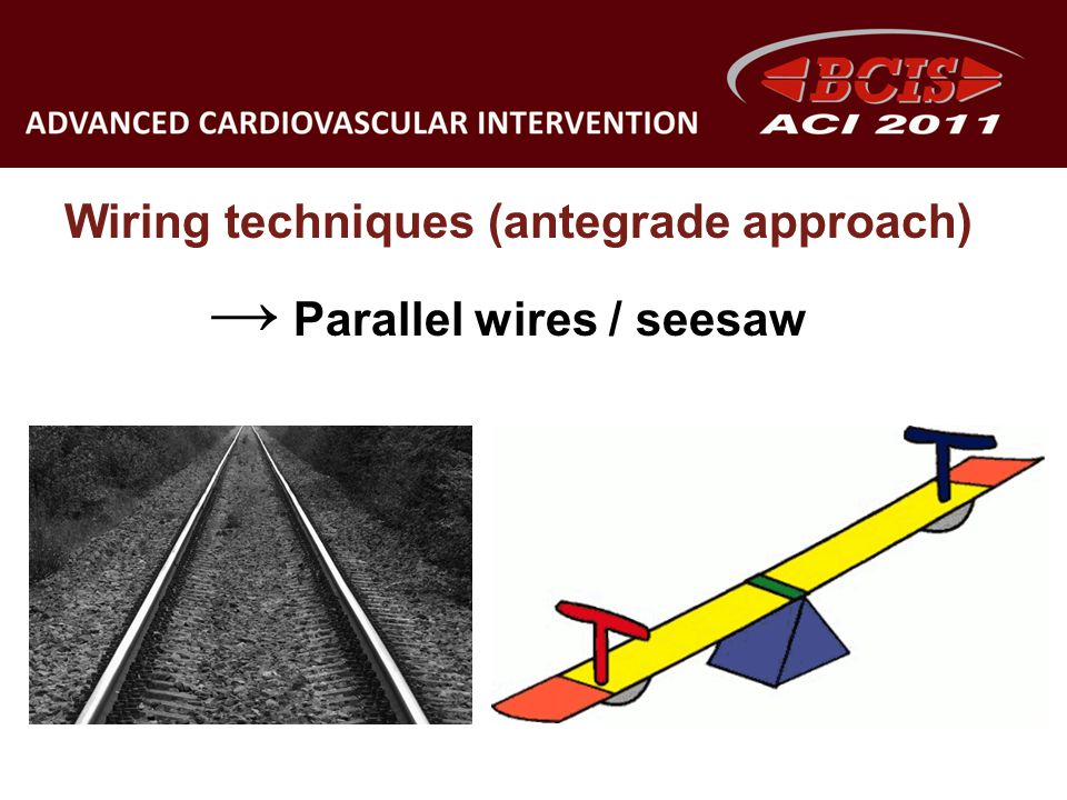 Wiring techniques (antegrade approach) Parallel wires / seesaw