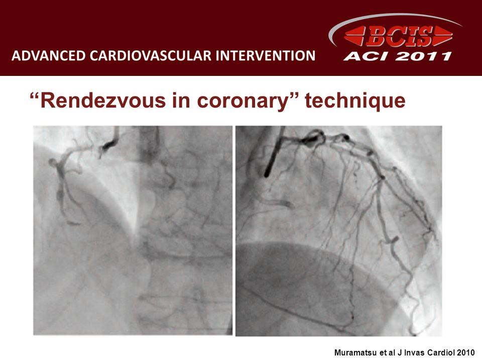 Rendezvous in coronary technique Muramatsu et al J Invas Cardiol 2010