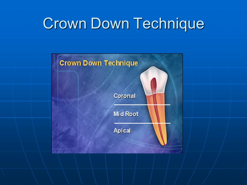 Crown Down Technique