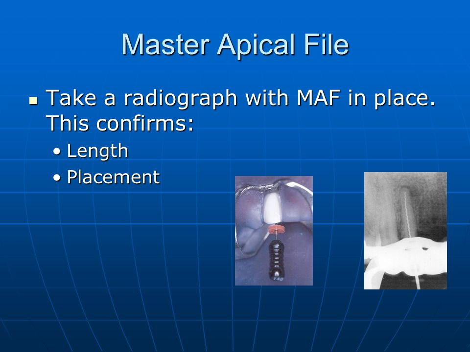 Master Apical File Take a radiograph with MAF in place. This confirms: Take a radiograph with MAF in place. This confirms: LengthLength PlacementPlace