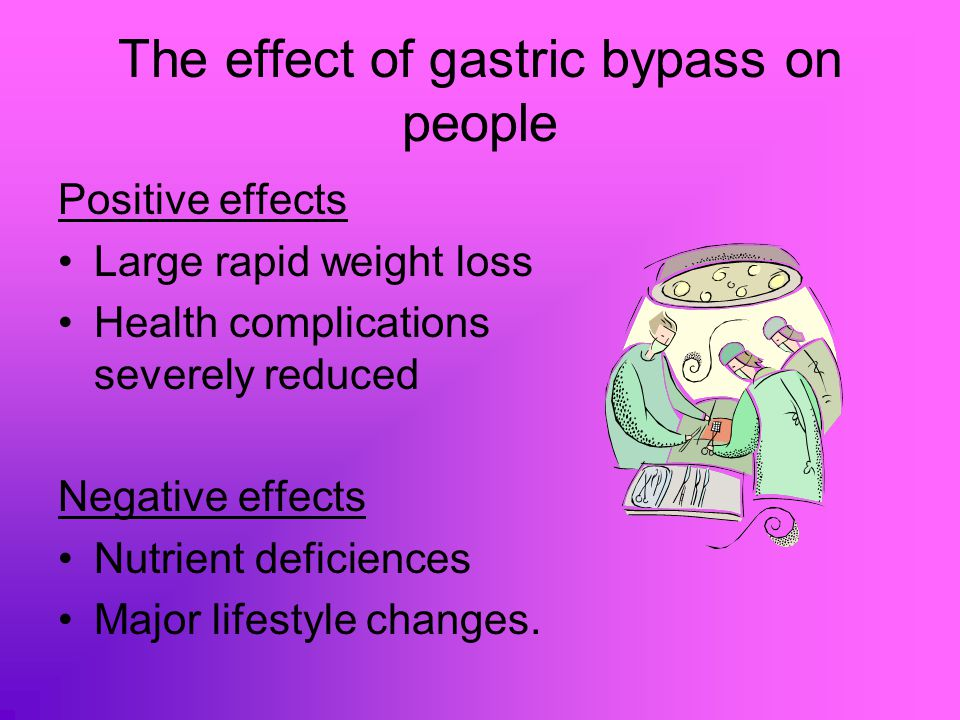 Important Biological concepts and process involved in gastric bypass Saiety and stomach size Nutrient absorption in the small intestine.