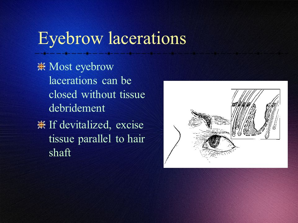 Eyebrow lacerations Most eyebrow lacerations can be closed without tissue debridement If devitalized, excise tissue parallel to hair shaft
