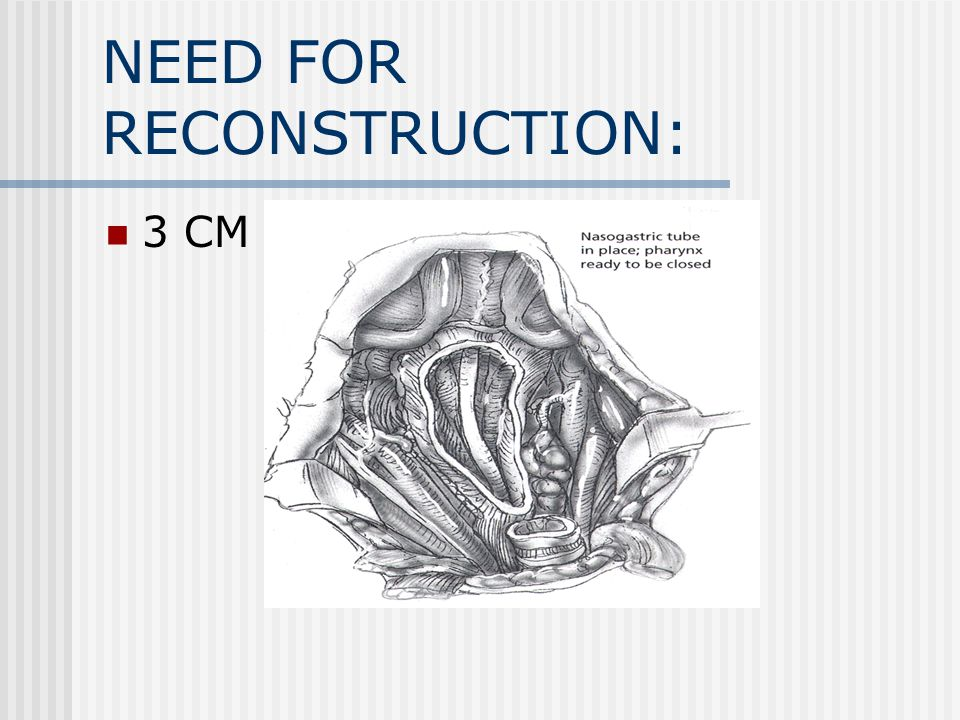 NEED FOR RECONSTRUCTION: 3 CM