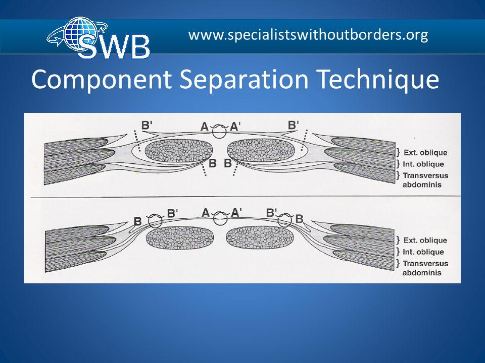 www.specialistswithoutborders.org Component Separation Technique