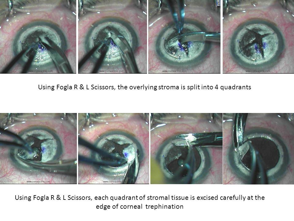 Using Fogla R & L Scissors, the overlying stroma is split into 4 quadrants Using Fogla R & L Scissors, each quadrant of stromal tissue is excised care