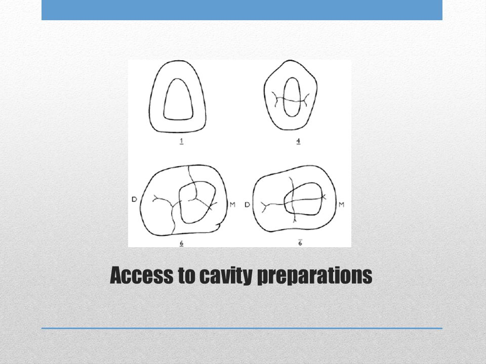 Access to cavity preparations