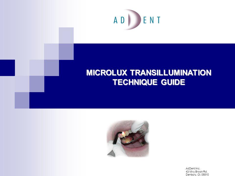MICROLUX TRANSILLUMINATOR Portable, lightweight battery powered unit.