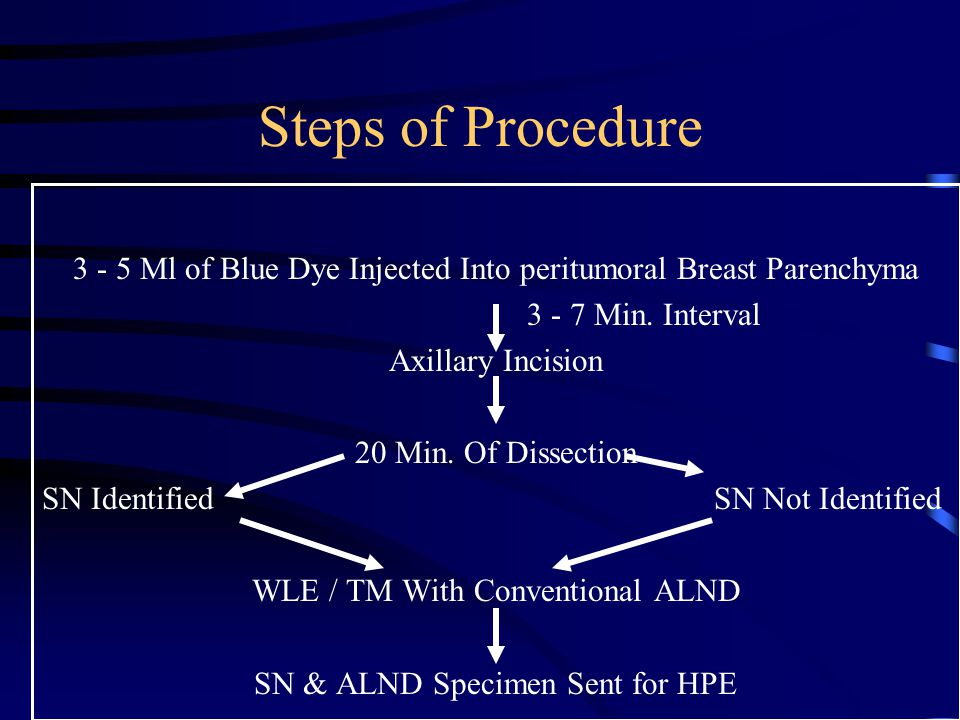 Steps of Procedure 3 - 5 Ml of Blue Dye Injected Into peritumoral Breast Parenchyma 3 - 7 Min. Interval Axillary Incision 20 Min. Of Dissection SN Ide
