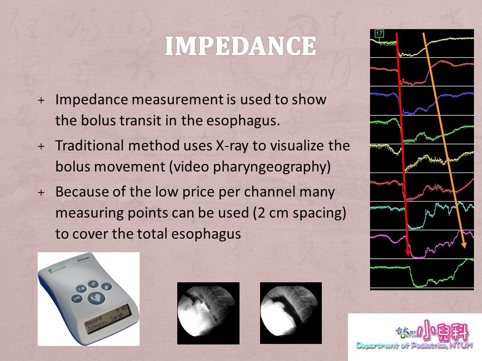 + STT (Segment Transit Time) – Time elapsed between: Bolus entry at a channel and Bolus exit at next (lower) channel STT