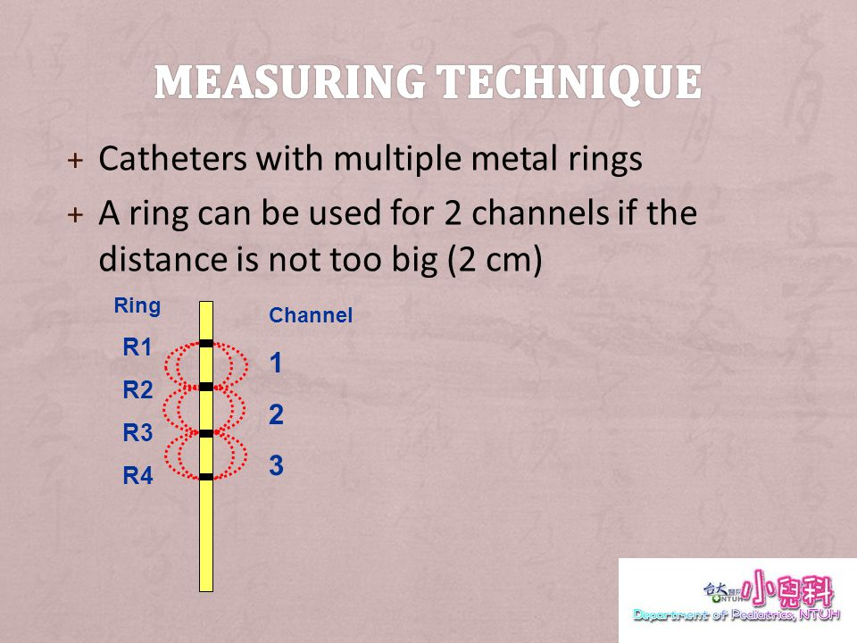 + Catheters with multiple metal rings + A ring can be used for 2 channels if the distance is not too big (2 cm) Channel 1 2 3 Ring R1 R2 R3 R4