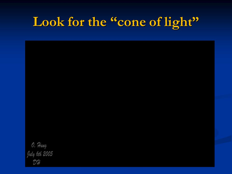 Look for the cone of light