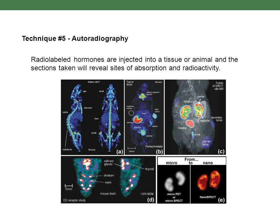 Technique #5 - Autoradiography Radiolabeled hormones are injected into a tissue or animal and the sections taken will reveal sites of absorption and r