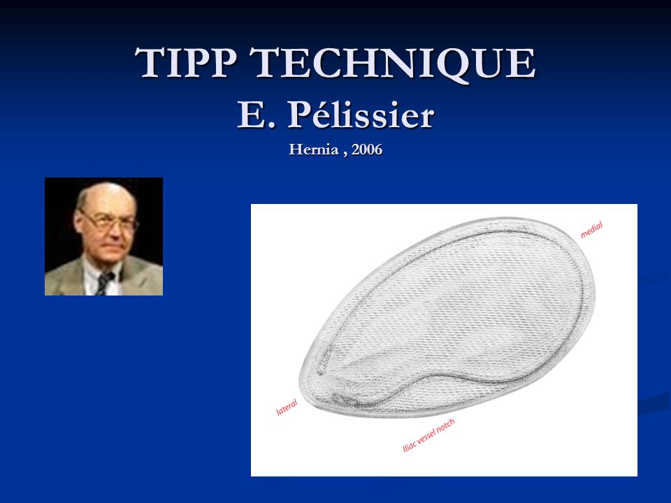 TIPP TECHNIQUE E. Pélissier Hernia, 2006