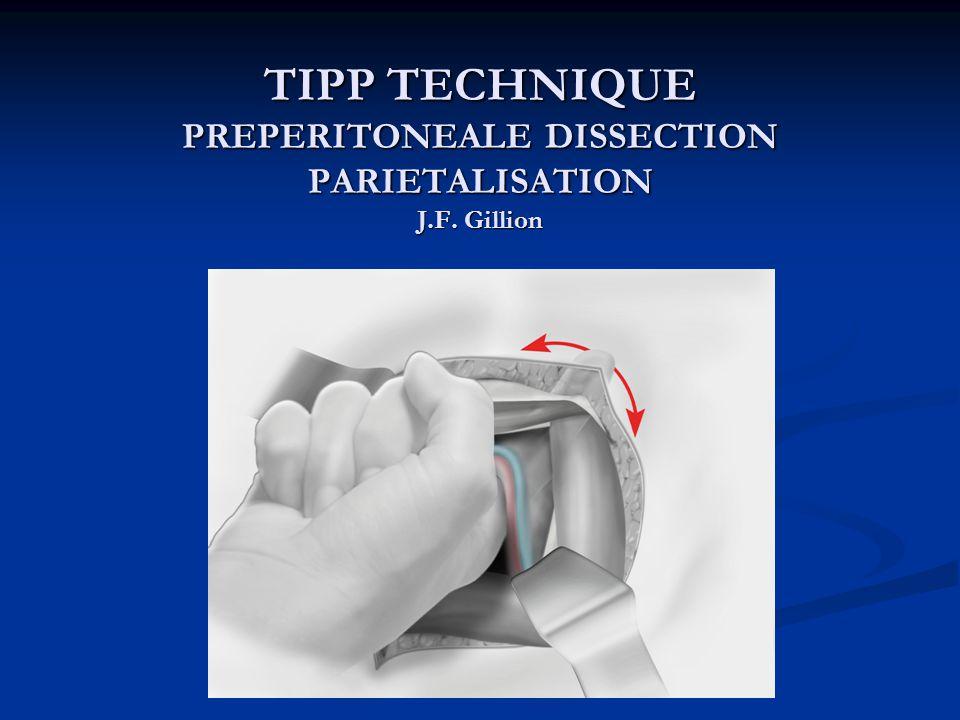 TIPP TECHNIQUE PREPERITONEALE DISSECTION PARIETALISATION J.F. Gillion