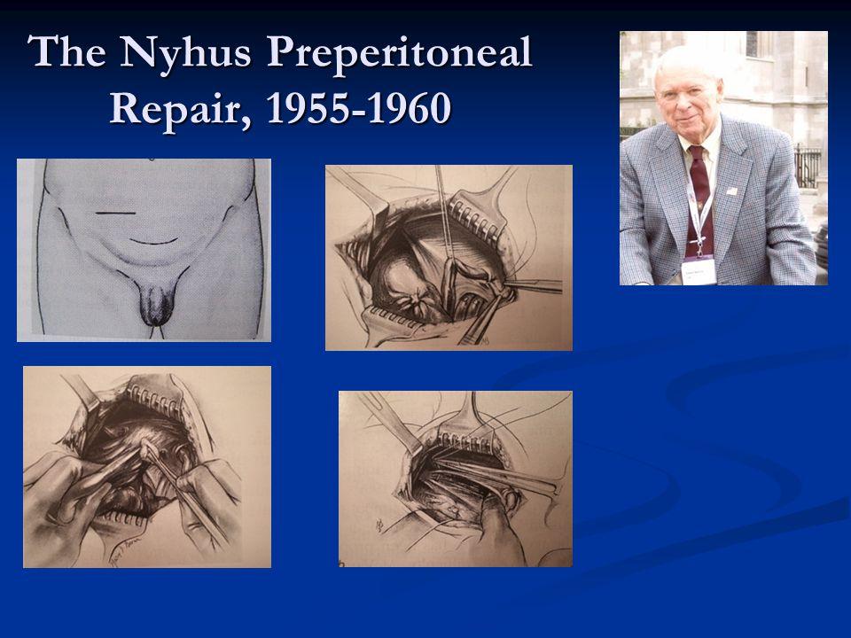 The Nyhus Preperitoneal Repair, 1955-1960