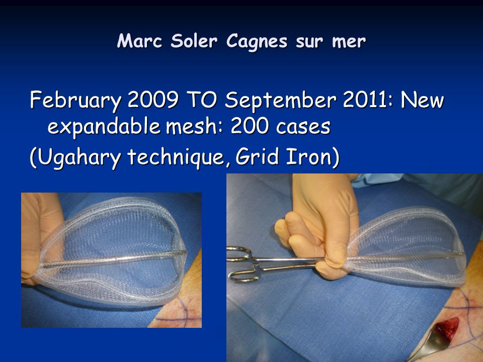 Marc Soler Cagnes sur mer February 2009 TO September 2011: New expandable mesh: 200 cases (Ugahary technique, Grid Iron)
