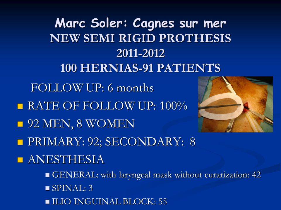 Marc Soler: Cagnes sur mer NEW SEMI RIGID PROTHESIS 2011-2012 100 HERNIAS-91 PATIENTS FOLLOW UP: 6 months FOLLOW UP: 6 months RATE OF FOLLOW UP: 100%
