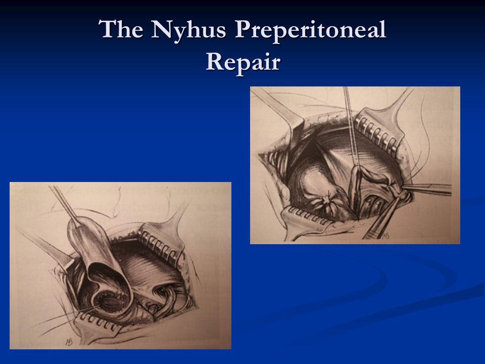 The Nyhus Preperitoneal Repair