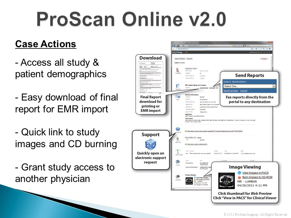 ProScan Online v2.0 Case Actions - Access all study & patient demographics - Easy download of final report for EMR import - Quick link to study images and CD burning - Grant study access to another physician © 2011 ProScan Imaging – All Rights Reserved