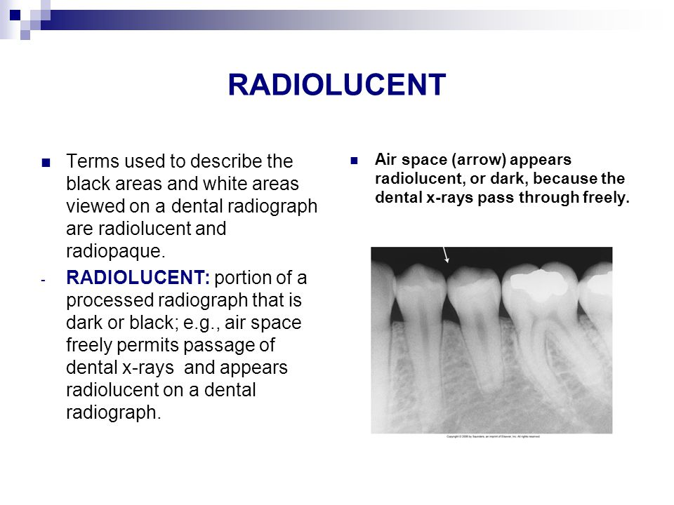 RADIOLUCENT Terms used to describe the black areas and white areas viewed on a dental radiograph are radiolucent and radiopaque.