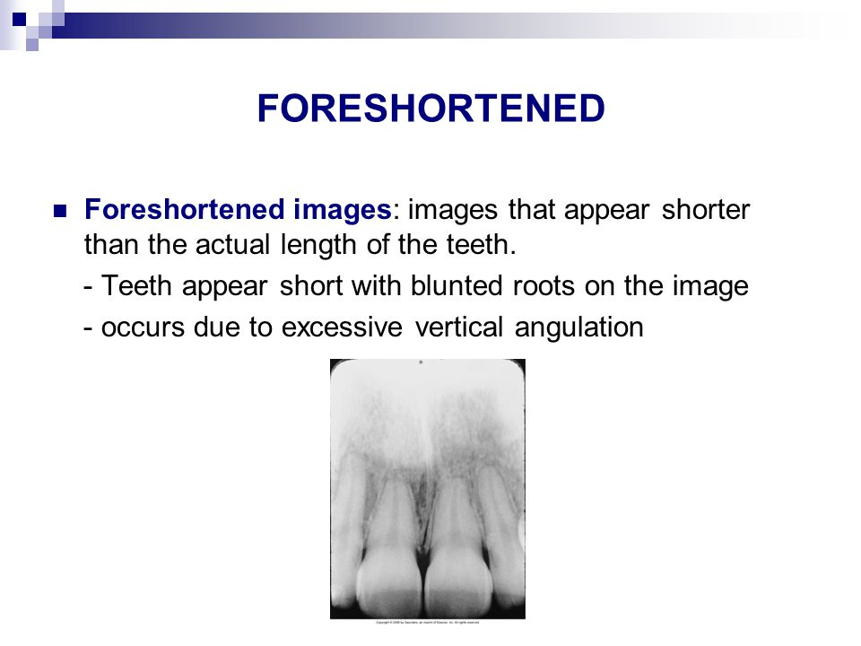 ELONGATED IMAGES Elongated images: images that appear longer than the actual length of the teeth.