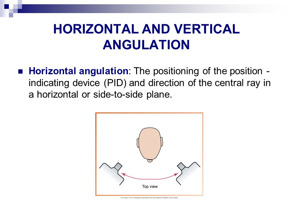 HORIZONTAL AND VERTICAL ANGULATION Horizontal angulation: The positioning of the position - indicating device (PID) and direction of the central ray in a horizontal or side-to-side plane.