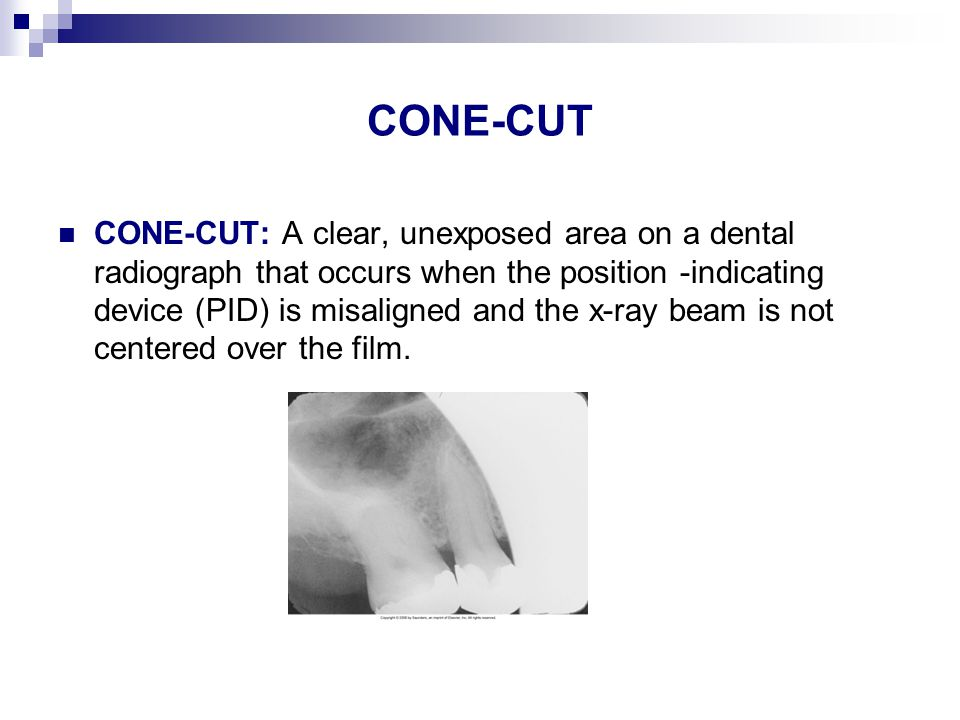 CONE-CUT CONE-CUT: A clear, unexposed area on a dental radiograph that occurs when the position -indicating device (PID) is misaligned and the x-ray beam is not centered over the film.