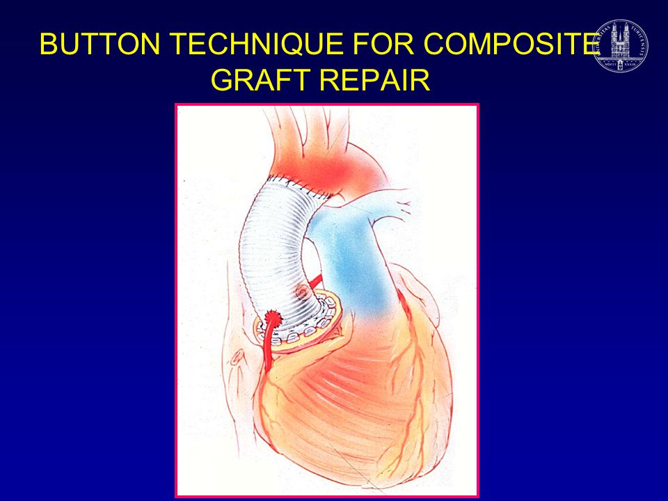 BUTTON TECHNIQUE FOR COMPOSITE GRAFT REPAIR