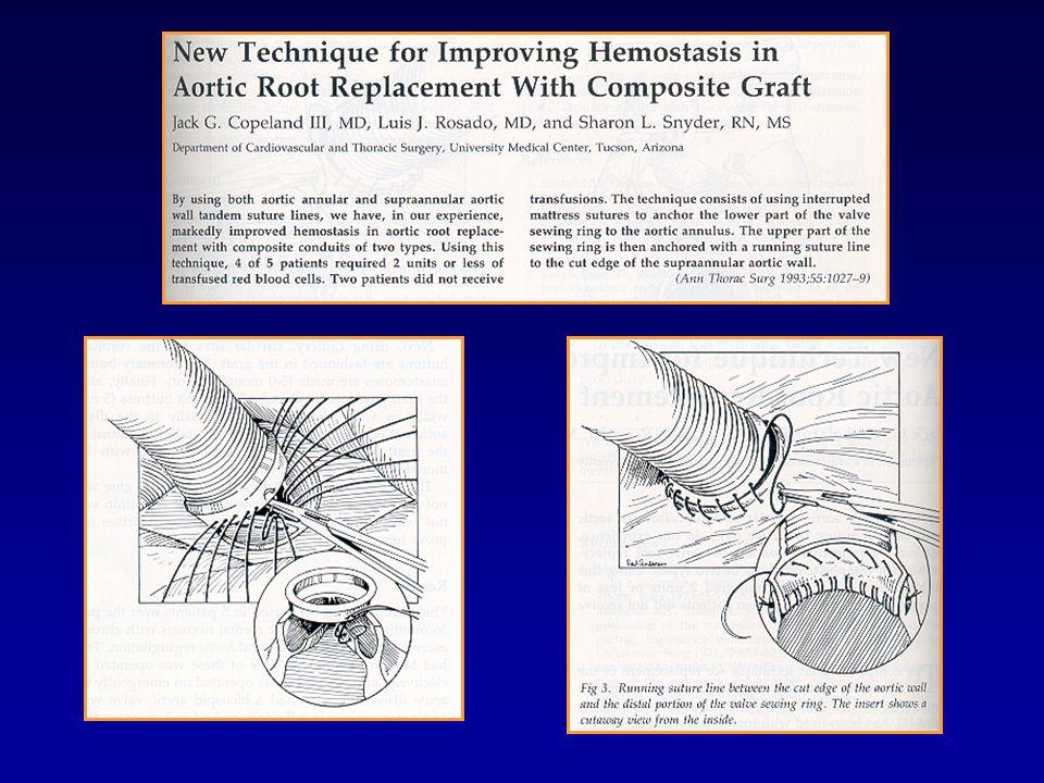 Modifications of Button Technique Hilgenberg et al, Ann Thor Surg 1996 Pratali et al, Tex Heart Inst J 2000